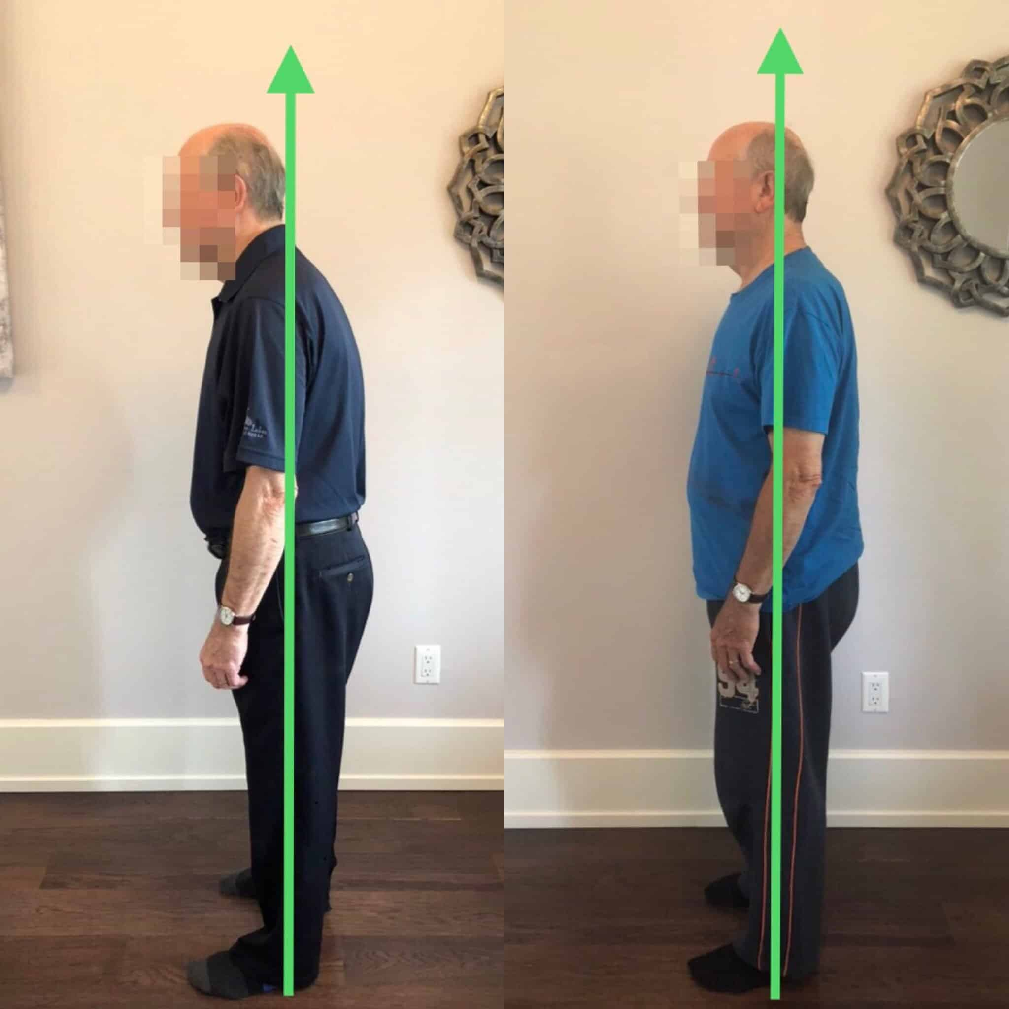 After 3 Somatics sessions, this client's posture improved dramatically and he eliminated his shoulder pain